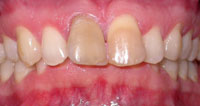 veneers before 2