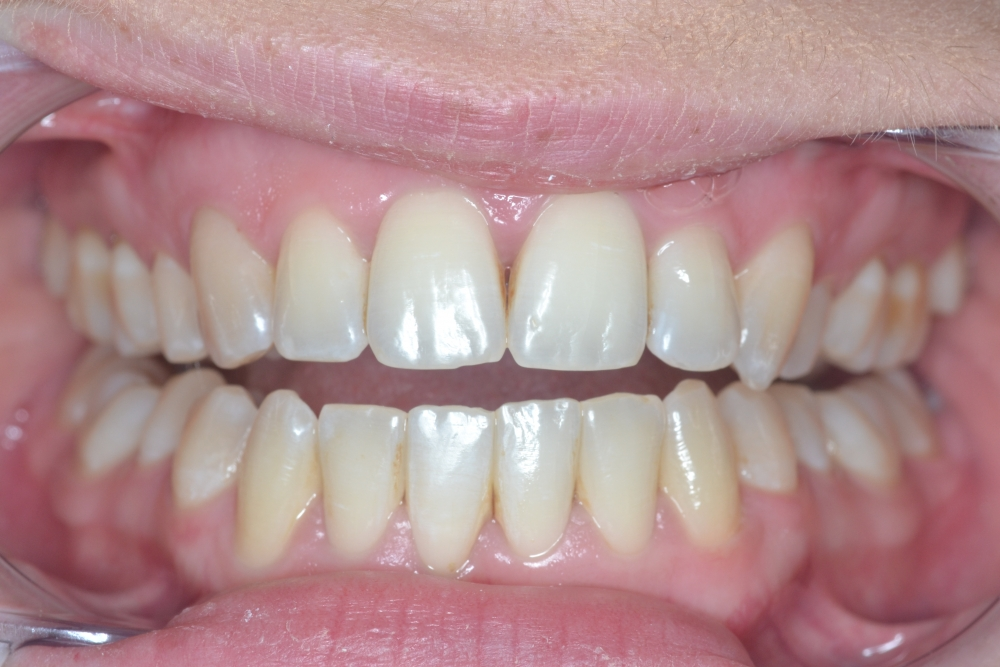inman aligner after