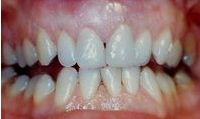 After treatment at Clifton Moor Dental Centre