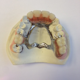 cobalt chrome dentures
