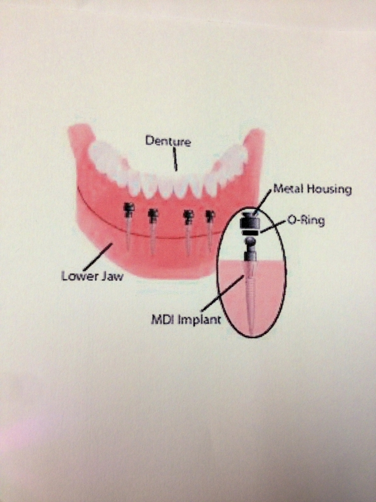 mini implant diagram