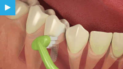 Implant Care